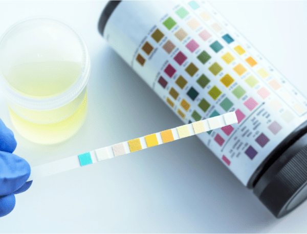 Why Urinalysis is Critical to Your Success